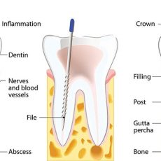 root-canal-min